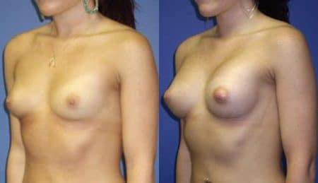 patient-11009-breast-augmentation-before-after-3