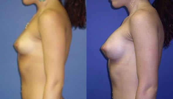 patient-11009-breast-augmentation-before-after-4