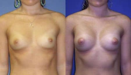 patient-11009-breast-augmentation-before-after