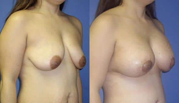 patient-11020-breast-augmentation-before-after-1