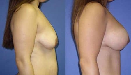 patient-11020-breast-augmentation-before-after-2