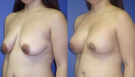 patient-11020-breast-augmentation-before-after-3