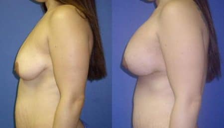patient-11020-breast-augmentation-before-after-4