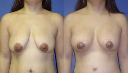 patient-11020-breast-augmentation-before-after