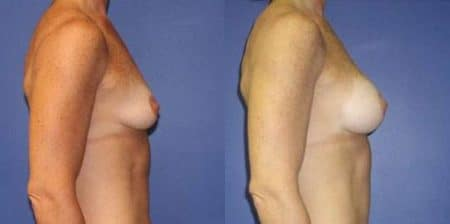 patient-11031-breast-augmentation-before-after-1