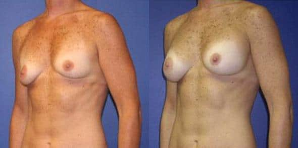 patient-11031-breast-augmentation-before-after-2