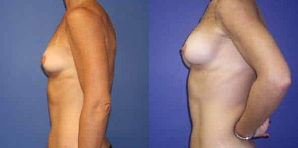 patient-11031-breast-augmentation-before-after-3