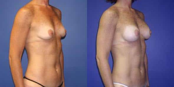 patient-11031-breast-augmentation-before-after