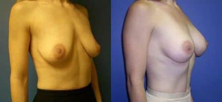 patient-11040-breast-augmentation-before-after-1
