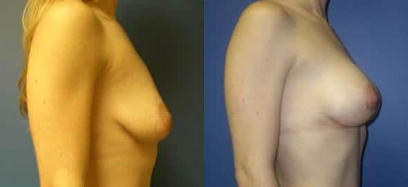 patient-11040-breast-augmentation-before-after-2