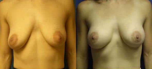 patient-11040-breast-augmentation-before-after