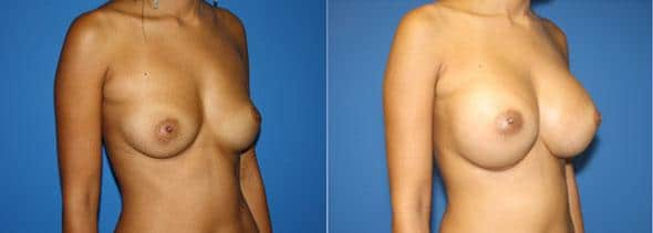 patient-11047-breast-augmentation-before-after-1