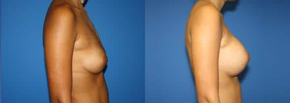 patient-11047-breast-augmentation-before-after-2