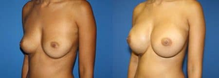 patient-11047-breast-augmentation-before-after-3