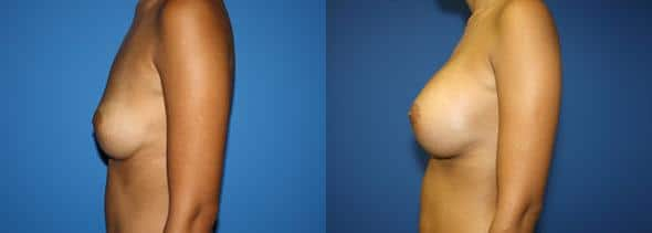 patient-11047-breast-augmentation-before-after-4