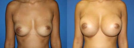 patient-11047-breast-augmentation-before-after