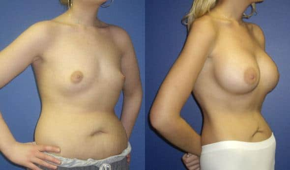 patient-11058-breast-augmentation-before-after-1