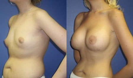 patient-11058-breast-augmentation-before-after-3