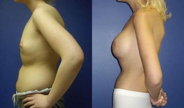 patient-11058-breast-augmentation-before-after-4