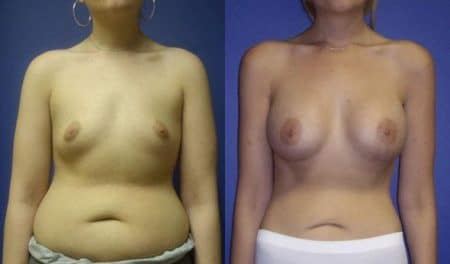patient-11058-breast-augmentation-before-after