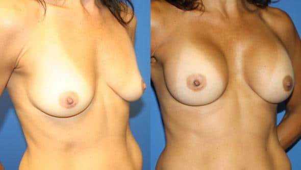 patient-11069-breast-augmentation-before-after-1