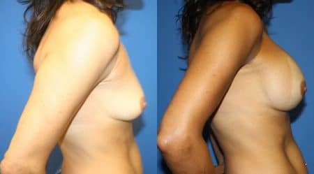 patient-11069-breast-augmentation-before-after-2