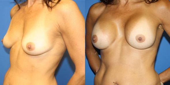 patient-11069-breast-augmentation-before-after-3