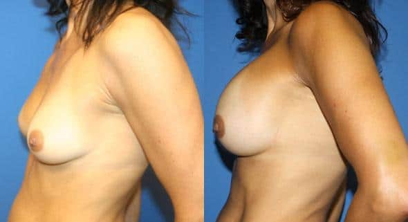 patient-11069-breast-augmentation-before-after-4