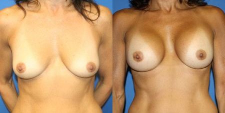 patient-11069-breast-augmentation-before-after