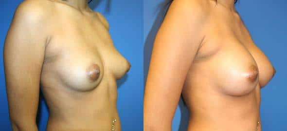 patient-11080-breast-augmentation-before-after-1
