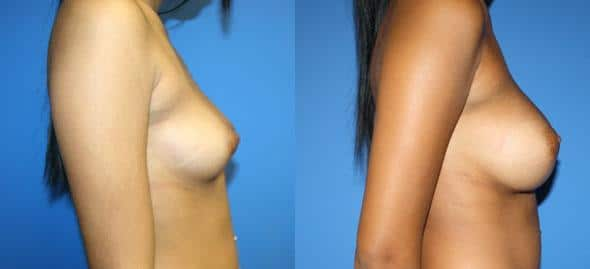 patient-11080-breast-augmentation-before-after-2