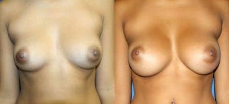 patient-11080-breast-augmentation-before-after