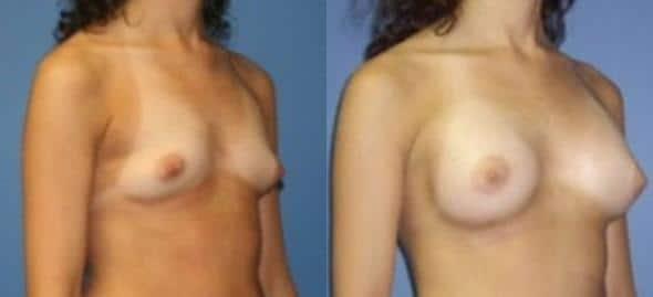patient-11087-breast-augmentation-before-after-1