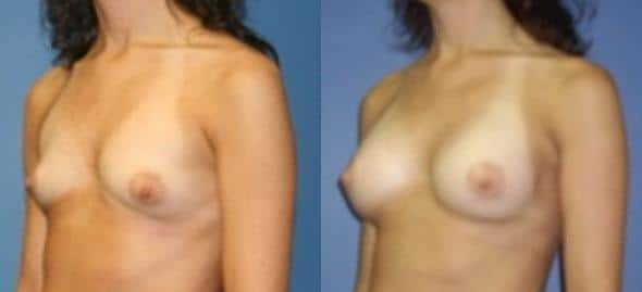 patient-11087-breast-augmentation-before-after-2