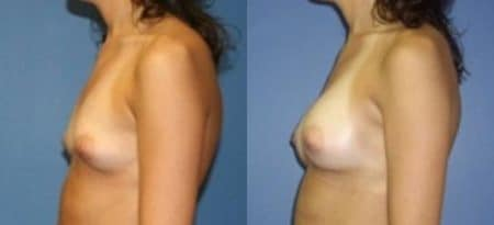 patient-11087-breast-augmentation-before-after-3