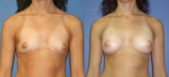 patient-11087-breast-augmentation-before-after