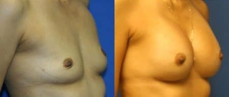 patient-11096-breast-augmentation-before-after-1
