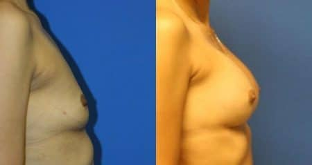 patient-11096-breast-augmentation-before-after-2