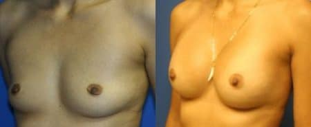 patient-11096-breast-augmentation-before-after-3