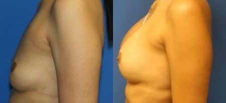 patient-11096-breast-augmentation-before-after-4