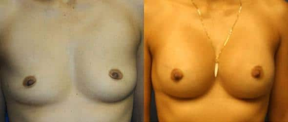 patient-11096-breast-augmentation-before-after