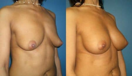 patient-11107-breast-augmentation-before-after-1