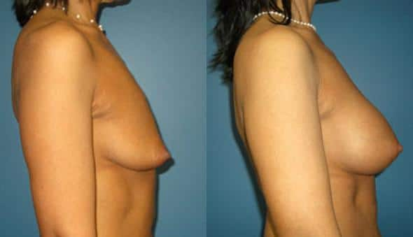 patient-11107-breast-augmentation-before-after-2