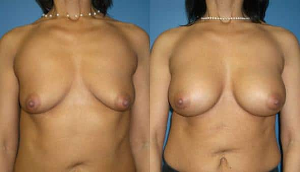 patient-11107-breast-augmentation-before-after
