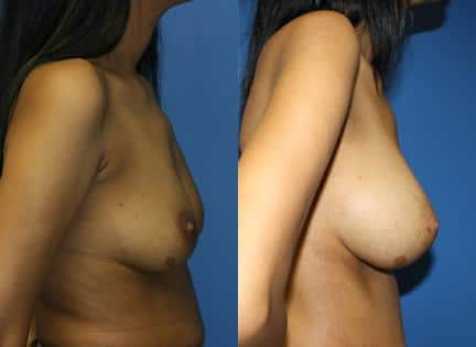 patient-11114-breast-augmentation-before-after-1