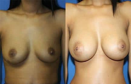 patient-11114-breast-augmentation-before-after