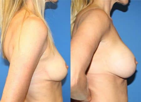 patient-11119-breast-augmentation-before-after-1