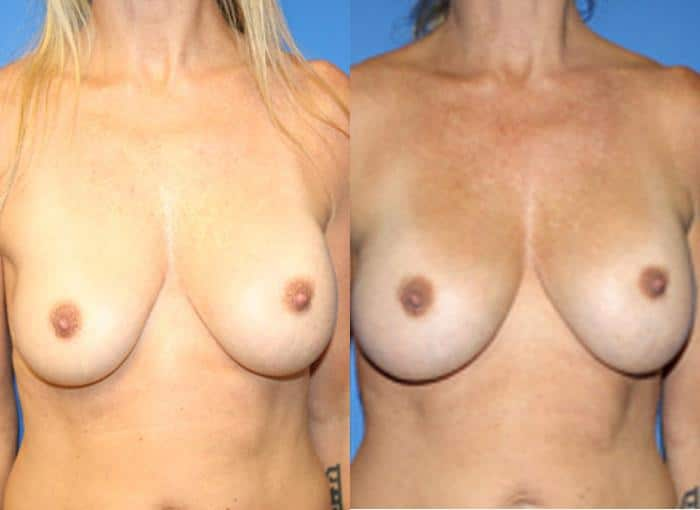 patient-11119-breast-augmentation-before-after