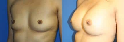 patient-11124-breast-augmentation-before-after-1