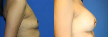 patient-11124-breast-augmentation-before-after-2
